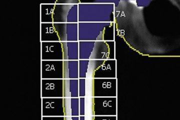 Zonele Gruen DXA ortopedic