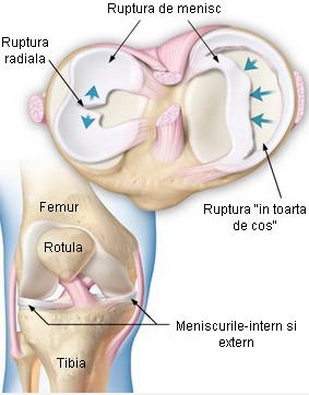 lezarea menisului și ligamentelor articulației genunchiului