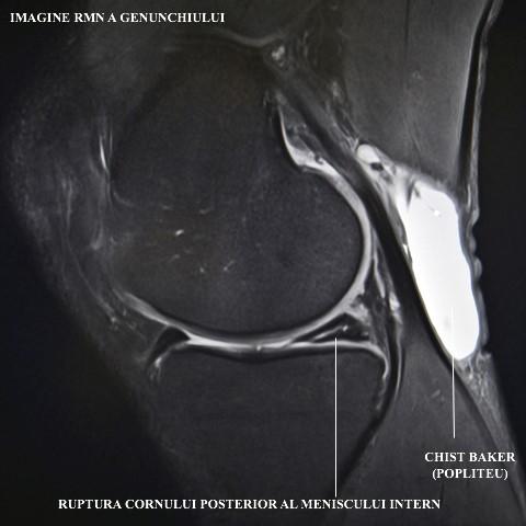 Ce trebuie sa stiti despre RMN-ul la genunchi | suceava360.ro
