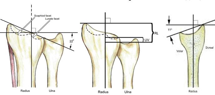 coaja durerilor articulare