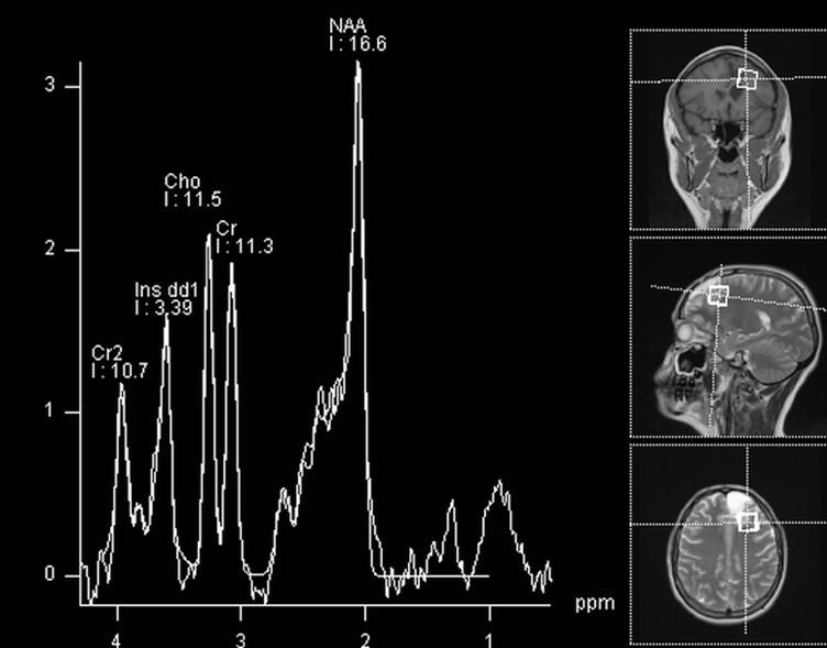 spectroscopie rmn cerebral